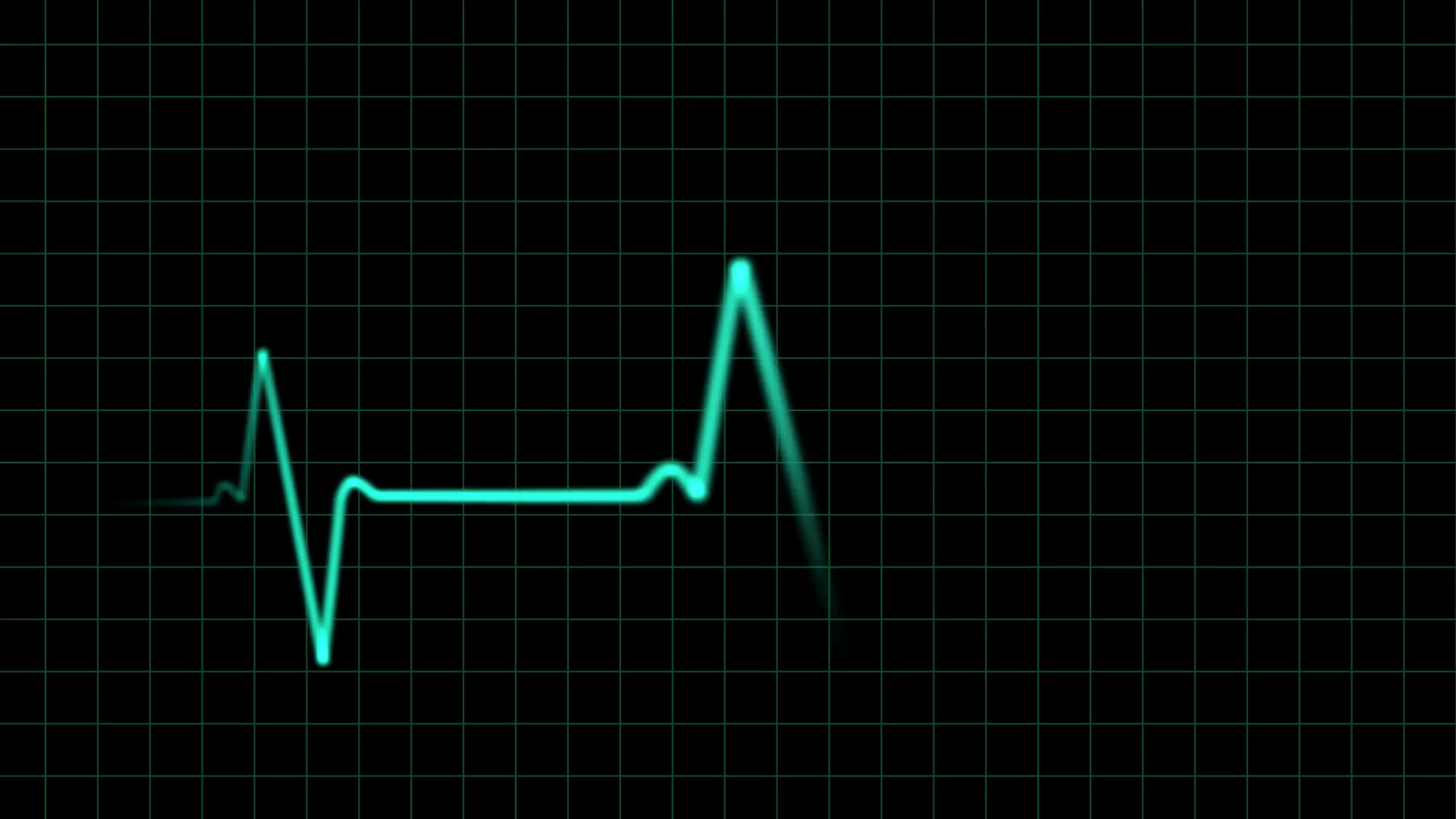 ekg-heartbeat-monitor-animation_vk7bajhz__F0000